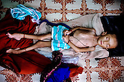 Zubin, 3, is portrayed in her usual semi-conscious state on the floor of her home in an impoverished area of Bhopal, Madhya Pradesh, India, near the abandoned Union Carbide (now DOW Chemical) industrial complex. Zubin has recently deceased.