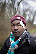 Calais, Januari 2015. M'barrak, a sudenese refugee was beaten by a stick of a police and he lost sight of his left eye. Human rights watch reports about the conditions thousands of stranded refugees have to deal with in Calais, on their way to the UK. In camps or 'jungles', several thousand asylum seekers and migrants, people from Syria, Iraq, Eritrea, Ethiopia, Sudan, Pakistan and Afghanistan are living in makeshift camps or in the streets in Calais. Some said that their treatment by police, a lack of housing for asylum seekers, and delays in the French asylum system had deterred them from seeking asylum in France.
