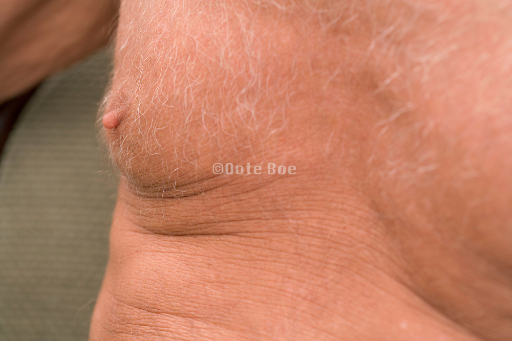 close up of nipple of an elderly person