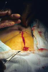 Surgery On Woman Of Large Intestine Tumor By Dr Rodrigo Scarpetta