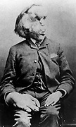 Joseph Carey Merrick (5 August 1862 – 11 April 1890), English man with severe deformities who was exhibited as a human curiosity named the Elephant Man.