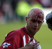 Picture: Henry Browne.<br />Date: 01/11/2003.<br />Southampton v Manchester City  FA Barclaycard Premiership.<br />Chris Marsden of Saints cuts his head open after a clash with City's Sun Jihai