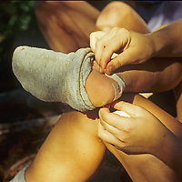 A hiker tapes her blistered heel along a Sierra Nevada trail.