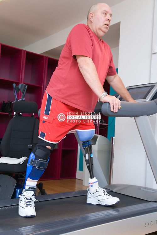 Man with prosthetic limb sidestepping on a treadmill at the gym,
