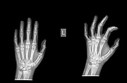Radius Distal fracture on a 13 year old female patient
