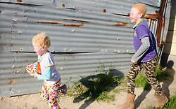 Cape Town- 180830  Linamandla Tyongozi  and Siphosethu Tyongozi from kuyasa Khayelitsha. The family are living with albinism. Albinism is a genetic condition. Primarily, albinism affects the hair eyes skin and vision The most common cause of albinism is an interruption in the functioning of the enzyme tyrosinase Picture:Ayanda Ndamane/ African News Agency ANA