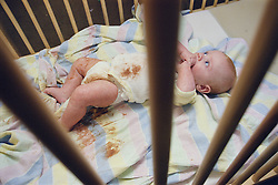 Neglected baby lying in dirty cot wearing soiled nappy,