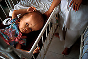 A Vietnamese child with hydrocephalus is cared for at Tu Du Hospital, a research center in Ho Chi Minh City studying the effects of the defoliant Agent Orange. The United States sprayed twenty million gallons of Agent Orange on the jungles of Vietnam over a decade of war, causing thousands of birth defects in two generations of Vietnamese children, according to Vietnamese doctors. © Steve Raymer/National Geographic Creative