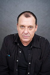 EXCLUSIVE: Actor Tom Sizemore, pictured before and after his hair transplant surgery at The Beverly Hills Center for Plastic & Laser Surgery. 25 Jan 2019 Pictured: Tom Sizemore. Photo credit: John Chapple / JohnChapple.com / MEGA TheMegaAgency.com +1 888 505 6342