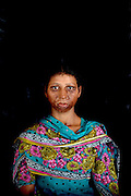 "Narayanganj, Bangladesh - <br /> <br /> Acid Attack<br /> <br /> Acid throwing, also called an acid attack or vitriolage, is a form of violent assault. It is defined as the act of throwing acid onto the body of a person ""with the intention to disfigure, maim, torture, or kill.'Perpetrators of these attacks throw acid at their victims, usually at their faces, burning them, and damaging skin tissue, often exposing and sometimes dissolving the bones. The long term consequences of these attacks include blindness and permanent scarring of the face and body, along with far-reaching social, psychological, and economic difficulties. These attacks are most common in Cambodia, Afghanistan, India, Bangladesh, Pakistan. Globally, at least 1500 people in 20 countries are attacked in this way yearly, 80% of whom are female and somewhere between 40% and 70% under 18 years of age.<br /> <br /> Acid violence is a particularly vicious and damaging form of assualt in Bangladesh where acid is thrown in people' faces. The overwhelming majority of the victims are women, and many of them are below 18 years of age. The victims are attacked for many reasons. In some cases it is because a young girl or women has spurned the sexual advances of a male or either she or her parents have rejected a proposal of marriage. Recently, however, there have been acid attacks on children, older women and also men. These attacks are often the result of family and land dispute, dowry demands or a desire for revenge.<br /> <br /> But the scars left by acid are not just skin deep. In addition to the inevitable psychological trauma, some survivors also face social isolation and ostracism that further damage their self-esteem and seriously undermine their professional and personal futures. Women who have survived acid attacks have great difficulty in finding work and, if unmarried (as many victims tend to be), have very little chance of ever getting married. In a country like Bangladesh this has serious social and economic consequences.<br /> <br /> Nitric or sulphu"
