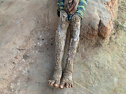 "EXCLUSIVE: A 10-year-old girl suffering from a rare skin disorder is gradually turning into a stone. Scutes shaped as barks -- caused due to mutation of genes -- have spread all over her body. Rajeshwari, hailing from a tribal area in Dantewada district of north Indian state of Chhattisgarh suffers from a case of ichthyosis that causes reddening, scaling and severe blistering of the skin. The incurable disease affects the process of skin regeneration in the human body, making it hard and flaky. Visuals show a heart-wrenching sight of Rajeshwari sitting under a thatched hut with blisters almost covering her whole body. Though the disease doesn't pose any risk to her life, it has made a life 'a living hell'. The disease hinders her daily life, making even simple activities such as walking and sitting very painful. According to reports, the rare genetic condition affects very few people and till now only two dozen cases have been reported in the world. The rarity of the case makes research difficult and the medicine to control the incurable disease has severe side effects. For people residing in the Naxal infested area, availing simple health care is already a mean feat and Rajeshwari's condition requires her to travel to a big city which is difficult for the time being. when doctors were shown the patient's case file, few of them came forward to express their opinions and diagnosis. Speaking about her condition, Dr.Satyaki Ganguly, Associate Professor at All India Institute of Medical Sciences(AIIMS), Raipur, said "" The medical term for this genetic disorder is Ichthyosis Psoriasis and due to very few cases in India, there has not been any major breakthrough in terms of research. Currently, science has no cure for this ailment."" Another dermatologist has another take on Rajeshwari's case, Dr.Yash Upender from Dantewada Hospital believes that the girl suffers from Epidermolytic Ichthyosis which is not a life threatening disease but is still uncurable. Medication"