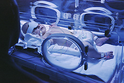 Two day old term baby on Neonatal unit being drip fed in an incubator having phototherapy treatment for jaundice,