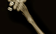 X-ray of a dog's front left leg at a veterinary surgery The technician's hand holding the paw can be seen