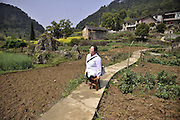 Mar 25, 2016 - Chongqing, Chongqing, China - A village doctor without legs treat more than 6000 patients walking with 2 small benches for 15 years destroyed up to 30 benches at the same time in Chongqing,China on 25th March 2016.<br />