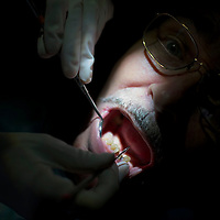 A dentist cleans a patients teeth at the Remote Area Medical clinic in Wise, Virginia July 20, 2012.  Organizers hope to bring free medical, dental and vision care to more than 3500 uninsured and underinsured people in the rural Virginia area.