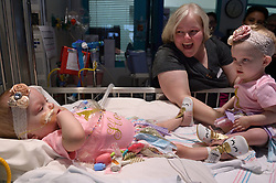 """The second of the formerly conjoined twin girls who was separated in a seven-hour surgery earlier this year has been discharged after spending 482 days in hospital. Hope Elizabeth Richards was allowed home last week [April 25, 2018], eight weeks after her sister Anna Grace was discharged from Texas Children's Hospital in Houston on March 2. Her mother Jill Richards said: """"This is the moment it all feels real. """"We are so excited for Hope to join Anna and her brothers at home. Our family is eternally thankful for the doctors, nurses, child life specialists, physical therapists and many others at Texas Children's who took incredible care of our precious girls."""" The twins, who are now aged 16 months, were successfully separated during a mammoth surgery that involved a multidisciplinary 75-strong team of surgeons on January 13. The sisters were previously conjoined at their chest and abdomen, through the length of their torso and shared the chest wall, pericardial sac (lining of the heart), diaphragm and liver. The girls were delivered via C-section on 29 December, 2016, at 35 weeks gestation. The Richards family, from North Texas, learned Jill was carrying conjoined twins during a routine ultrasound. The family was then referred to Texas Children's Fetal Center, where they underwent extensive prenatal testing, consultation and development of plans to achieve a safe delivery and postnatal care. They temporarily relocated to Houston in order to deliver at Texas Children's and be close to the girls during their hospital stay. 25 Apr 2018 Pictured: CAPTION: Formerly conjoined twin girl Hope Elizabeth Richards is released from Texas Children's Hospital on April 25, 2018, and her sister Anna Grace, who was discharged six weeks prior, was there to meet her sibling. LOCAL CAPTION: Hope Elizabeth and Anna Grace Richards reunite at Texas Children's before Hope is discharged. Photo credit: Paul Vincent Kuntz/ MEGA TheMegaAgency.com +1 888 505 6342"""