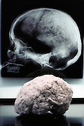 (1992) An 8,000 year old brain of a prehistoric American which was part of a DNA study of 91 brains on lineage relationships and hereditary diseases conducted at the University of Florida in Gainesville.