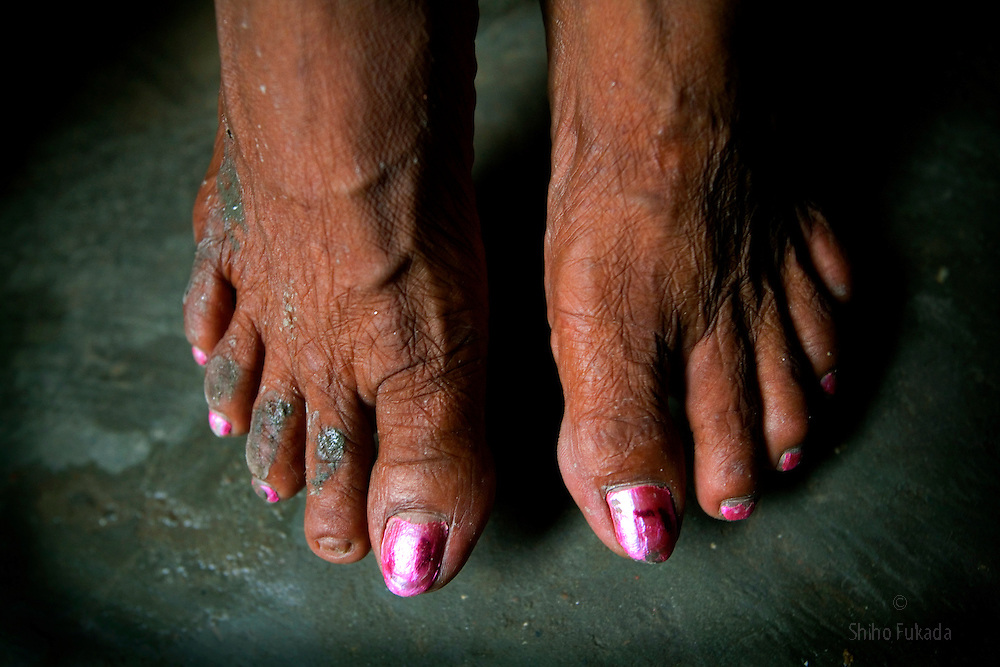 Feet of aging sex worker Josna, 60, are seen at brothel in Faridpur, Bangladesh.