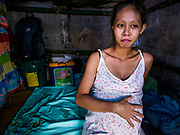26 JANUARY 2018 - SANTO DOMINGO, ALBAY, PHILIPPINES: JULIAN BALAGERNO, 23, in her tent in the Barangay Lidong shelter. She is more than 8 months pregnant and expecting to give birth at the shelter. She was evacuated from her home on the slopes of the Mayon Volcano. The shelter is in school and all of the classrooms are already being used to house evacuees. Recent arrivals are living in tents and huts on the school grounds. The volcano was relatively quiet Friday, but the number of evacuees swelled to nearly 80,000 as people left the side of  the volcano in search of safety. There are nearly 12,000 evacuees in Santo Domingo, one of the communities most impacted by the volcano. The number of evacuees is impacting the availability of shelter space. Many people in Santo Domingo, on the north side of the volcano, are sleeping in huts made from bamboo and plastic sheeting. The Philippines is now preparing to house the volcano evacuees for up to three months.      PHOTO BY JACK KURTZ