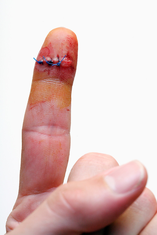 Logan MB bites on his finger with stitches.