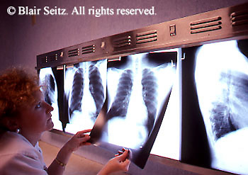 Medical Physician, X-rays, X-ray Display, Lightbox and X-rays, nurse reviews X-rays,