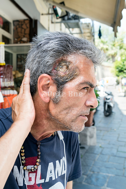 person displaying his head wound