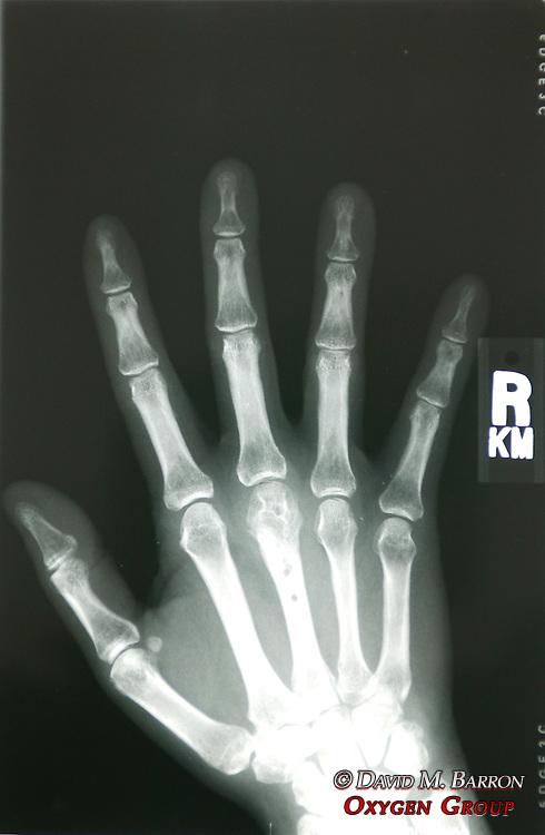 X-Ray Of Kris Timmerman's Hand Bitten By Black Bear Fixed