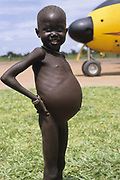 A malnourished child stands in front  of a Buffalo plane delivering food aid. Ajiep, Bahr el Ghazal, Sudan. The famine in Sudan in 1998 was a humanitarian disaster caused mainly by human rights abuses, as well as drought and the failure of the international community to react to the famine risk with adequate speed. The worst affected area was Bahr El Ghazal in southwestern Sudan. In this region over 70,000 people died during the famine.
