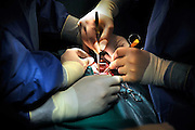 Nederland, Nijmegen, 26-2-2009Chirurgen voeren een borstoperatie uit in het UMC radboud.Foto: Flip Franssen
