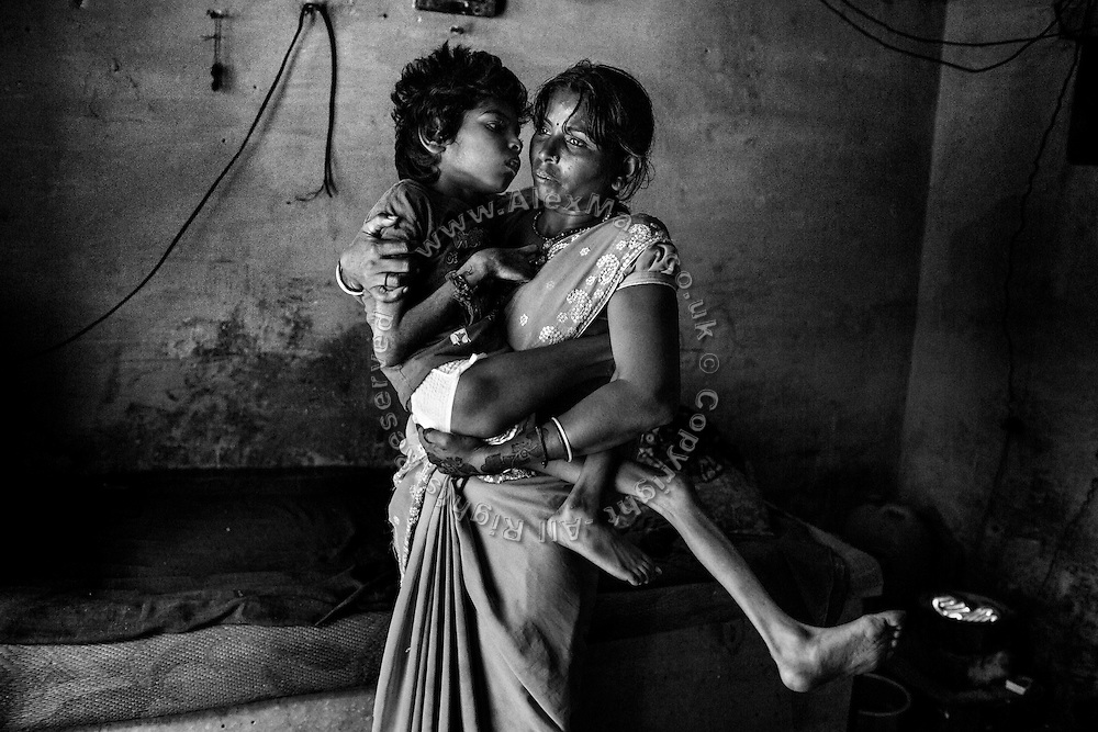 Aadite, 10, a boy suffering from a severe neurological disorder and malnutrition, is being held by his mother, Lakshmi, 30, while inside their home in Kabit Pura, near the abandoned Union Carbide (now DOW Chemical) industrial complex in Bhopal, Madhya Pradesh, central India. Aadite's father, Raju, a '1984 Gas Survivor', died in March 2013 at the age of 32, due to lungs failure. Aadite now lives in a small room with his mother, who works six days a week as a cleaner, his two sisters Mayuri, 13, Mahag, 8, and his younger brother Anuj, 6. None of the siblings in this family are attending school or any kind of practical education.