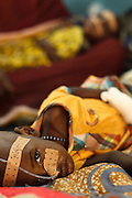 A child suffering from acute malnutrition lies at the UNICEF-sponsored Mao therapeutic feeding center in the town of Mao, Kanem region, Chad on Monday February 13, 2012.
