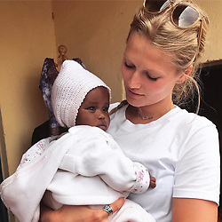"""Toni Garrn releases a photo on Instagram with the following caption: """"Throwing it back to cuddles w this baby girl in Rwanda.. who was apparently freezing, while I was sweating \ud83d\ude05 #tbt"""". Photo Credit: Instagram *** No USA Distribution *** For Editorial Use Only *** Not to be Published in Books or Photo Books ***  Please note: Fees charged by the agency are for the agency's services only, and do not, nor are they intended to, convey to the user any ownership of Copyright or License in the material. The agency does not claim any ownership including but not limited to Copyright or License in the attached material. By publishing this material you expressly agree to indemnify and to hold the agency and its directors, shareholders and employees harmless from any loss, claims, damages, demands, expenses (including legal fees), or any causes of action or allegation against the agency arising out of or connected in any way with publication of the material."""