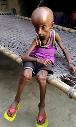 April 26, 2017 - Uttar Pradesh, India - Rupesh, 21, who suffers from a rare Hutchison Gilford Progeria Syndrome (a rare genetic condition that causes a child's body to age fast) pictured at his residence in Dharecha village of Hanumanganj district in Uttar Prdesh, India.....Rupesh's body started showing abnormal changes as he grew older. His head became bigger while his body shrivelled. At just 21, Rupesh now looks like an old man.  (Credit Image: © Cover Asia Press/Cover Asia via ZUMA Press)
