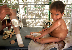 KABUL,AFGHANISTAN - SEPT. 11: An Afghan boy with polio is fitted for a leg brace that he will learn to walk with at an ICRC hospital in Kabul, Afghanistan September 11,2002. While Americans are remembering the attack on the World Trade Center  one year ago today, most Afghans are trying to forget the decades old war which killed more than a million people here in Afghanistan. (Photo by Ami Vitale/Getty Images)