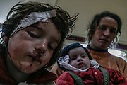 """Some of the people who suffered heavy injuries are given medical attention at the """"Mother Theresa"""" military hospital facilities after a chain of massive explosions at an ammunition depot over the weekend killed 26 people and leave over 300 injured near the Tirana capital of Albania on Sunday, March 16, 2008. (Photo by Vudi Xhymshiti)"""