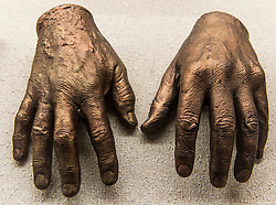 May 06, 2018 - Dallas, Texas, U.S. -  The bronzed hands of President GEORGE H.W. BUSH on display at the George W. Truett Memorial Hospital at the Baylor University Medical Center.  The more than 100 bronze cast hands of well known persons from the fields of politics, sports, the arts and exploration were the work of orthopedic surgeon Adrian E. Flatt (1921-2017), whose specialty was hand surgery.(Credit Image: © Brian Cahn via ZUMA Wire)