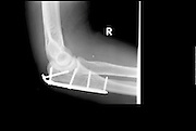 X-ray of a 39 year old male's elbow with surgical pins
