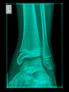 Healthy X-ray of an ankle 12 year old male front view