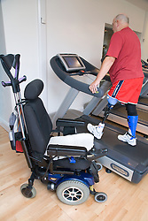 Man with prosthetic limb using a treadmill at the gym,