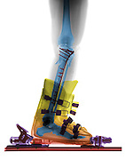 Enhanced X-ray of a fractured tibia in a ski boot.