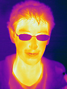 A Thermogram of a boy with glasses.  This image is part of a series.  The different colors represent different temperatures on the object. The lightest colors are the hottest temperatures, while the darker colors represent a cooler temperature.  Thermography uses special cameras that can detect light in the far-infrared range of the electromagnetic spectrum (900?14,000 nanometers or 0.9?14 µm) and creates an  image of the objects temperature..