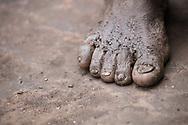 Foot of a Batwa elder tells the story of a hard life as a hunter-gatherer.