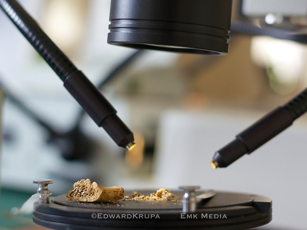 Studying human bone fragments using a microscope.