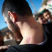 January 20, 2012 - Idleb, Syria: A Free Syria Army fighter shows the bullets wounds in his neck and shoulders provoked by Syrian Army snipper shots during combat in Idleb.