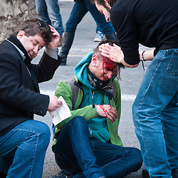 It is not clear if this individual was hit by a rubber bullet or a rock from a rioter.