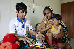 "September 18, 2016 - Dhaka, Bangladesh - Tahera, 3, daughter of Abul Bajandar , touches her father's hand at a hospital bad in Dhaka, Bangladesh, September 18, 2016. Doctors carried out several operations to remove extremely rare epidermodysplasia verruciformis warts from his hands and legs.  Abul, who was admitted to DMCH on January 30, has been suffering from an extremely rare genetic skin disease epidermodysplasia verruciformis, which is also referred to as ""Tree Man Disease."" The disease is caused by a defect in the immune system. It causes abnormal susceptibility to human papilloma viruses (HPVs), which eventually leads to the overgrowth of scaly macules and papules, especially on the feet and hands. Abul is the fifth person in the world reported to be suffering from the disease. (Credit Image: © Suvra Kanti Das via ZUMA Wire)"
