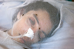RAWALPINDI, PAKISTAN - NOV-01-2006 - A victim of the recent earthquake in Pakistan lies in a vegetative state at the St. Joseph Hospice. The hospice was started by Father Francis O'Leary, an Irish missionary, in 1964. Franciscan nuns of the Missionaries of Mary, run the hospice and have a fully trained staff of 26 Pakistani nurses aides and volunteer doctors. The hospice, orphanage and free clinic has 60 beds for resident patients and treats 80-90 out patients daily.  St. Joseph is supported solely by donations.   (PHOTO © JOCK FISTICK)