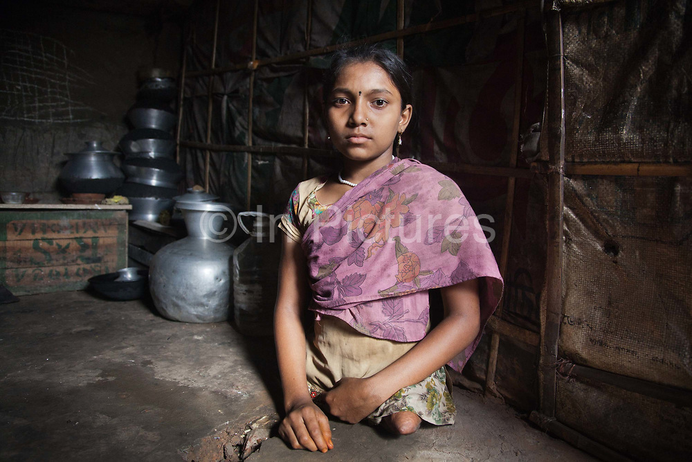 Dhaka, Bangladesh. Sumi, 12 years old at home. Sumi lives in the slums by the railway tracks in Tejgaon. When she was 18 months old a train hit her and cut off both her legs. She lives in a tiny shack with her brothers and sisters and grand mother. Her mother left shortly after the accident and her father has since married twice. CSID has provided her with a wheel chair and financial help for her to go to main stream school near by. She goes as often as she can, if there are no one to help her across the tracks in her wheel chair she cant go. At home and around the slum she moves by jumping along on her bum. The Stars Foundation visiting CSID. Centre for Services and Information on Disability (CSID) is a charity working for integrating disabled children into mainstream society.