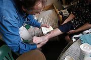 Nederland, Nijmegen, 27-3-2003..Huisarts verzorgt open wond aan been van oudere patient, veroorzaakt door kastdeur...Basiszorg, eerstelijnszorg, hulpverlening, ongeluk in huis..Foto: Flip Franssen