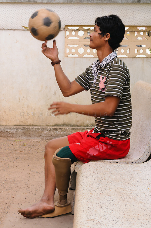 A teenage boy with a prosthetic leg due to stepping on a landmine is playing ball at the Physical Rehabilitation Center, Siem Reap, Cambodia. Photo © Robert van Sluis